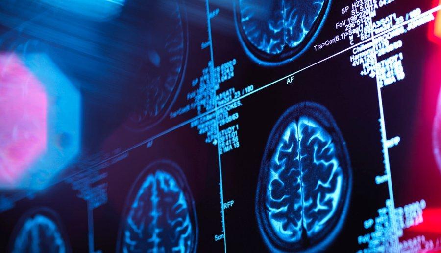 New Treatment for Alzheimer's Disease?